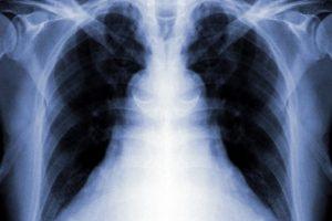 Основы диагностики туберкулеза у детей и подростков