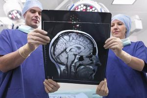 Поражения мозга могут служить маркером ВИЧ при отсутствии симптомов