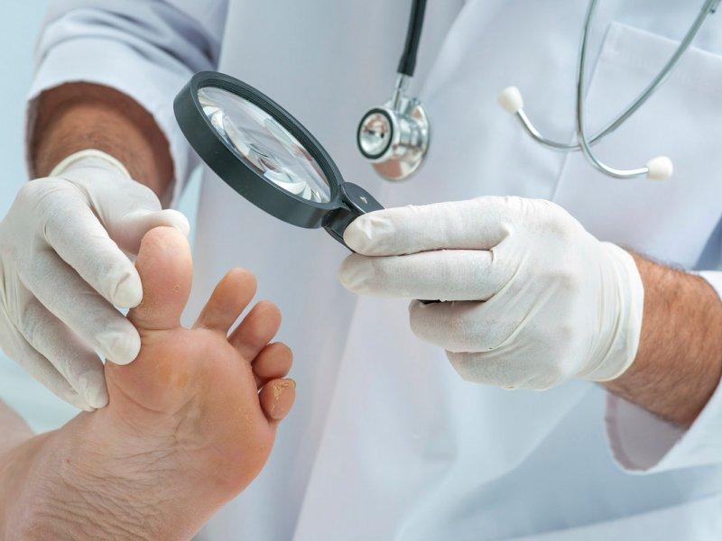 Сложный случай: как определить, что у вас грибок ногтей?