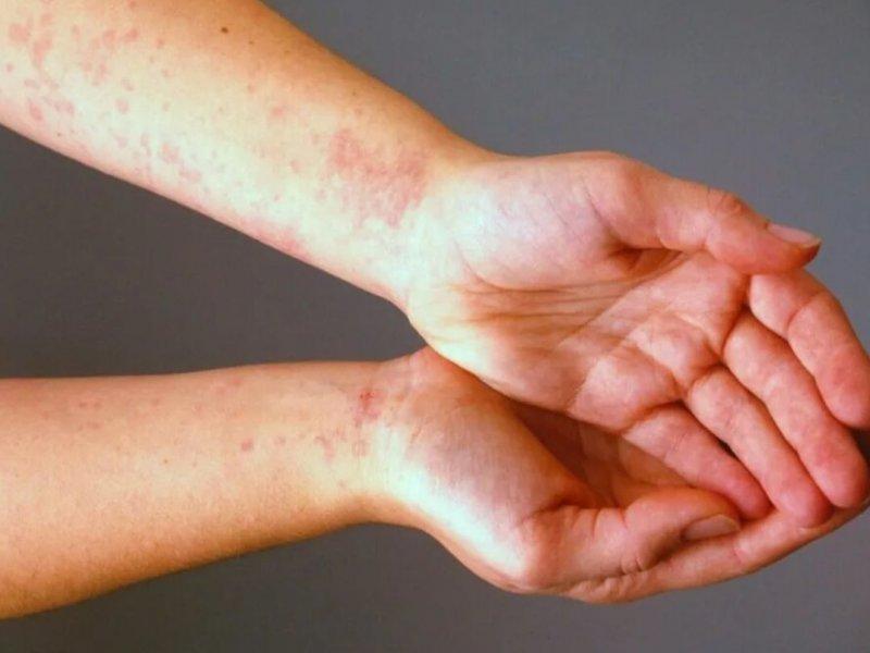 Холодная погода может стать причиной аллергических реакций организма