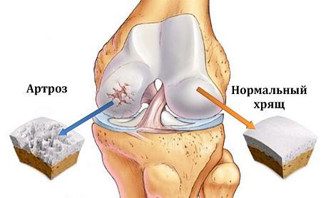 Деформирующий остеоартроз коленных суставов