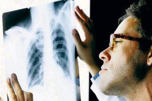 В Таганроге меньше стали болеть туберкулезом, но своевременно обследоваться все равно не желают