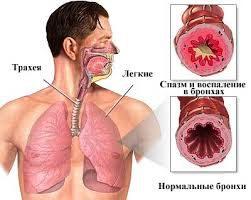 Причины развития бронхиальной астмы