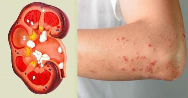 Сухость кожи и зуд могут быть ранними симптомами болезни почек