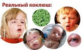 Коклюш – симптомы, причины, лечение и профилактика коклюша