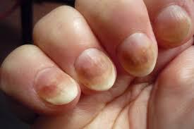 Сохрани красоту и здоровье ногтей
