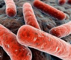 Что позволяет развиваться туберкулезу
