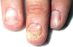 Защити свои ногти от грибка