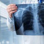 Названы 8 главных веществ для хорошего состояния легких