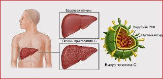 Как лечить вирусный гепатит правильно