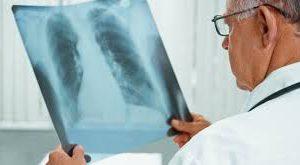 Россия добилась значительного темпа снижения заболеваемости туберкулезом