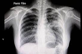 Пневмония (воспаление легких)