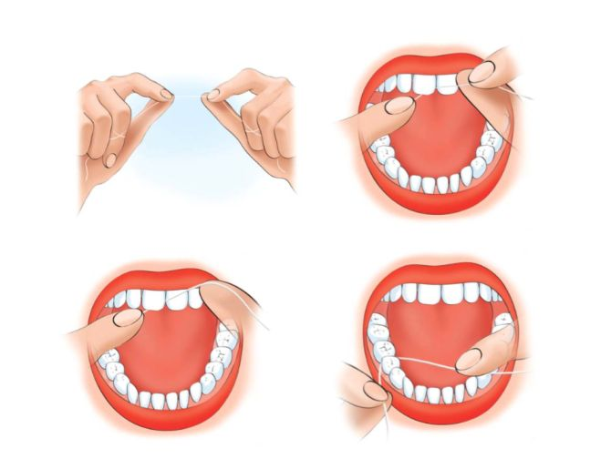 Правила гигиены полости рта: как правильно чистить зубы