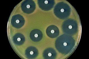 На каких вещах больше всего бактерий