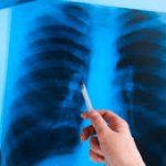 Дефицит витамина D связан с более высоким риском развития туберкулеза