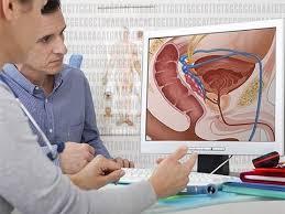Ученые узнали, как кишечные микробы влияют на лечение рака простаты