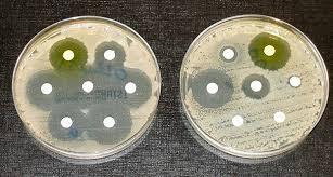Человечеству угрожают «кошмарные бактерии