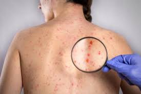 Сыпь при коревой инфекции