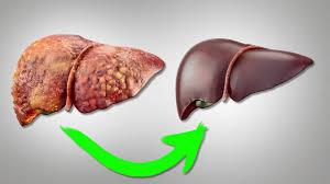 Лечение хронических гепатитов