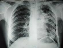 Туберкулез — это смертоносная, коварная инфекция