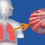 Специалисты нашли новый способ уничтожения микобактерий, вызывающих туберкулез