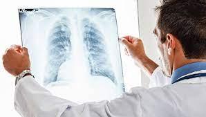 Новый тест позволит своевременно выявить туберкулез