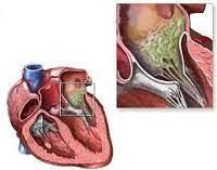 Симптомы инфекционного эндокардита