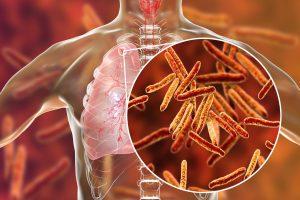 Ученые: витамин D может помочь в лечении туберкулеза