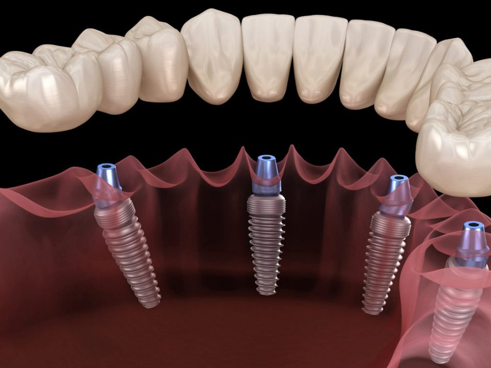 Где проводить имплантацию зубов?