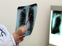 Исследователи приблизились к созданию новой вакцины от туберкулеза