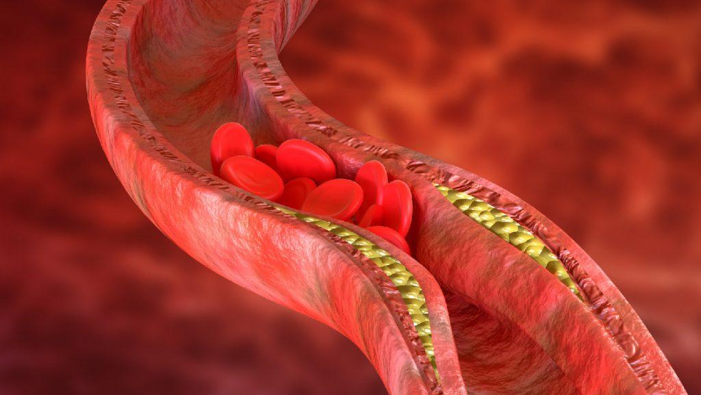 Ученые объяснили связь аденовирусных вакцин с редкими случаями тромбоза