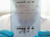 Гены подсказали, что делать с развивающейся устойчивостью туберкулеза