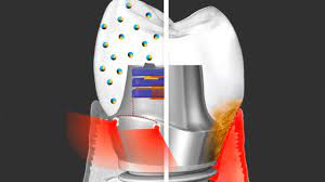 Новый зубной имплантат может лечить десны