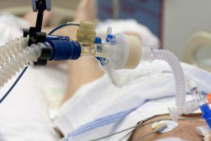 Делирий оказался распространенным осложнением при тяжелом COVID-19